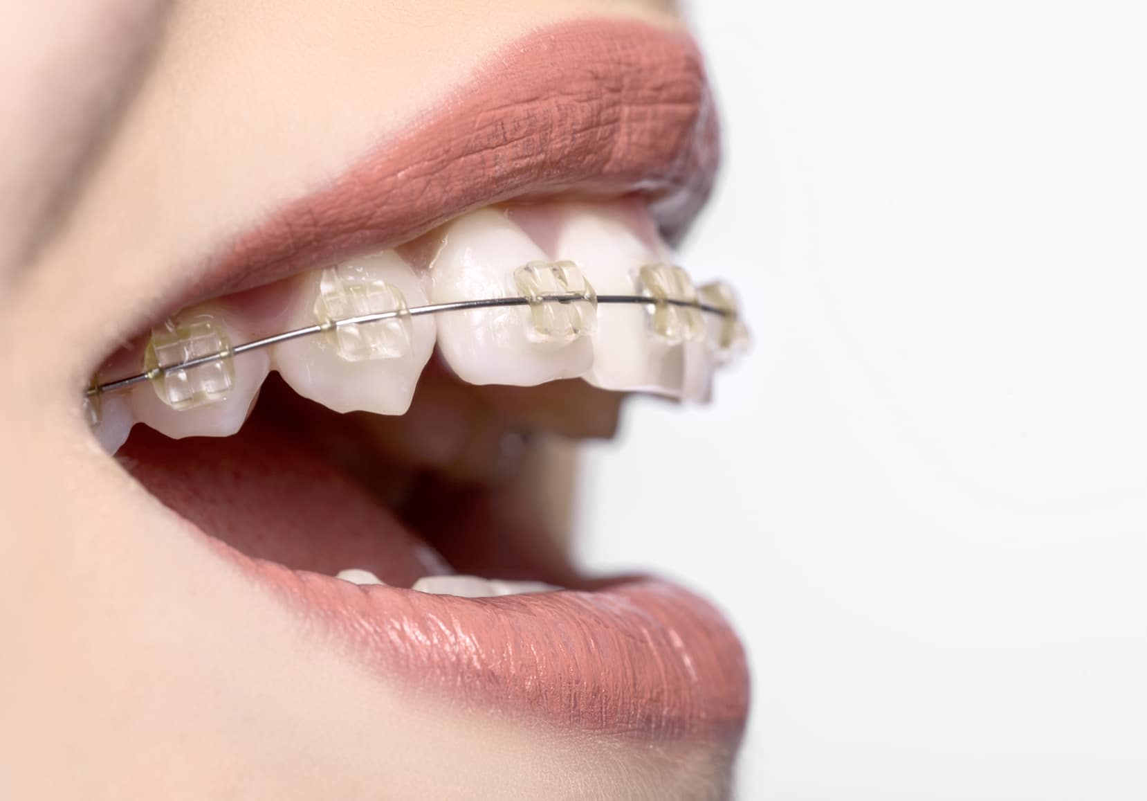 Tips To Help You Pick the Best Professional Orthodontics